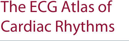 book of egc atlas of cardiac rhythms